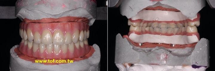 全口假牙 固持式 固定式